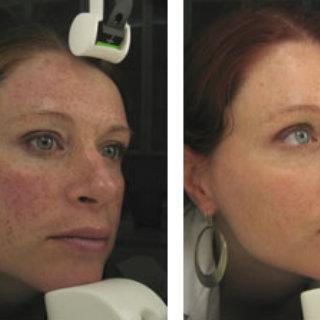 Intense Pulsed Light™ Treatment