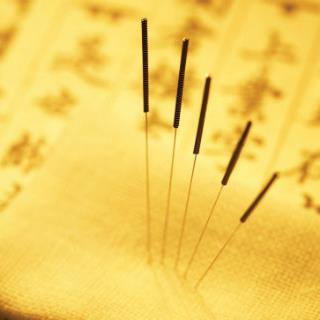 Acupuncture Consultation and Treatment