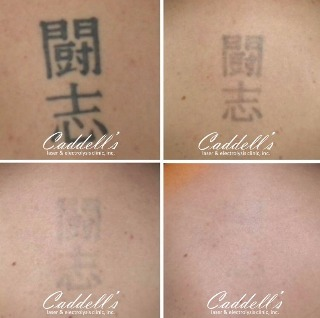 Tattoo Removal Summer Special