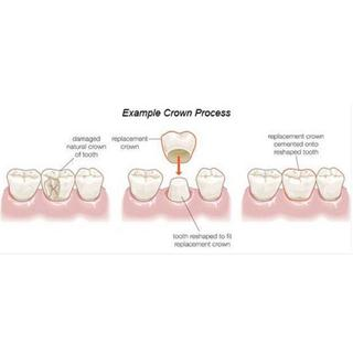 Same Day Crowns at Pavlovich Dental