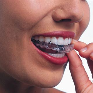 Invisalign Treatment by Sunrise Dental