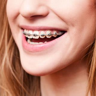 Orthodontic Braces by Sunrise Dental