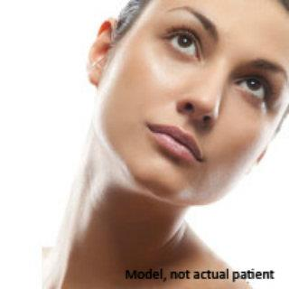 Juvederm by Partington Plastic Surgery
