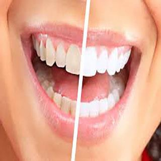 In Office Teeth Whitening Add-On